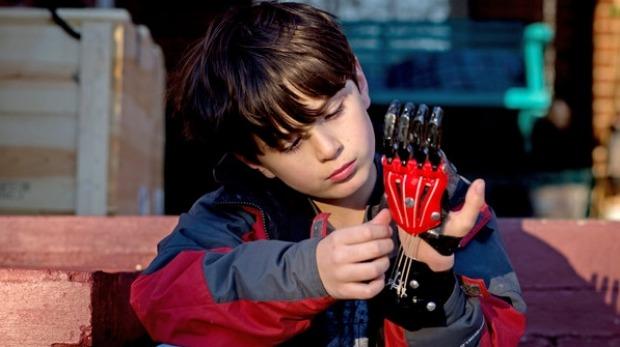 le projet Open Hand vise à utiliser l'innovation ouverte pour créer des prothèse à un cout très accessible pour les patients http://www.openhandproject.org/